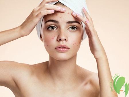 Домашние способы ухода за проблемной кожей лица
