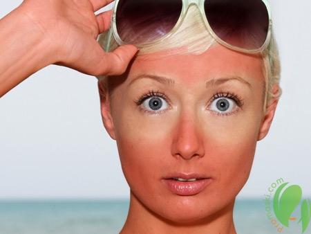 солнечный ожог на коже у девушки