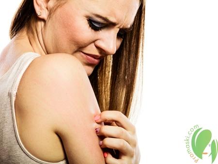 Как бороться с раздражением кожи?